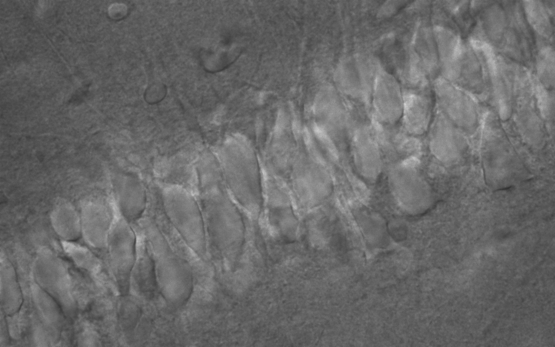 20151120_1(CA1 pyramidal neuron)